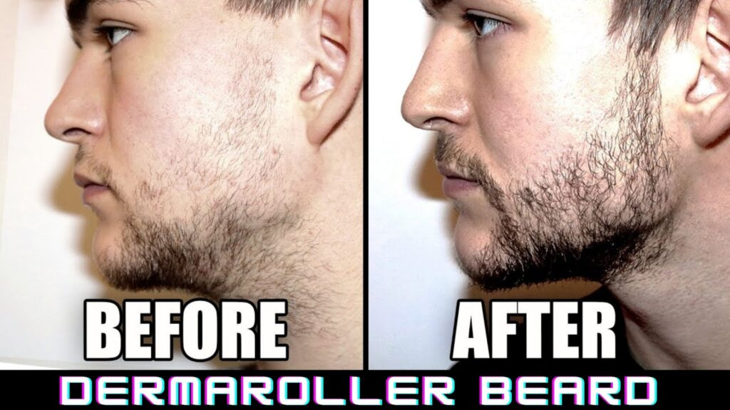 dermaroller beard before and after